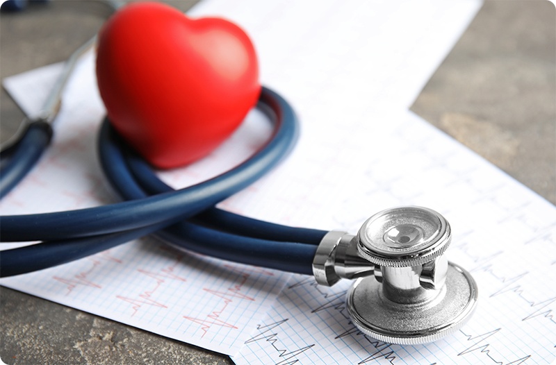 Stethoscope and heart rate on ECG paper